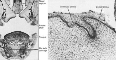 Difference Between Dental Lamina and Vestibular Lamina